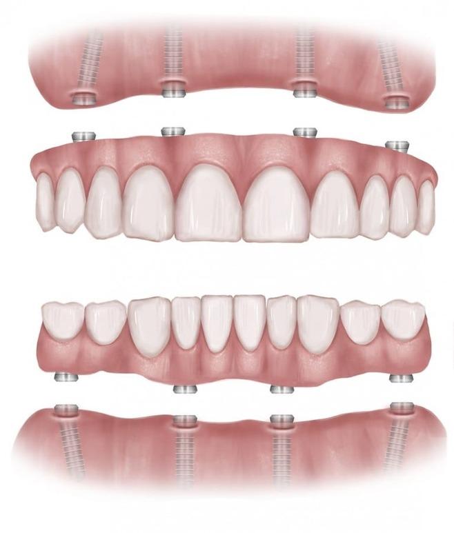 Стоматологическое протезирование зубов методом All-on- 4