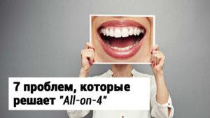 allon4
