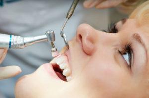 чистка зубов при пародонтозе