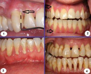 как восстановить зубы при пародонтозе