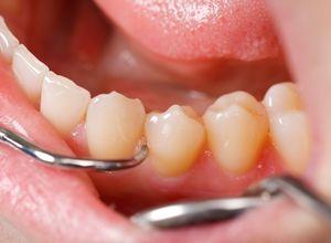 Стоматологическое лечение зубов при курении