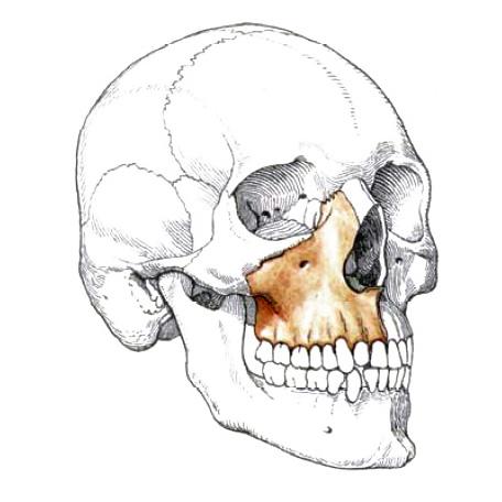 Бессменный спутник классической имплантации в большинстве случаев – синус-лифтинг