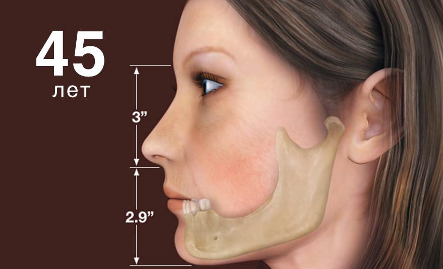Особенно проблематично с объемом костной ткани для имплантации в жевательных отделах