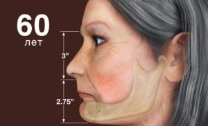 Потеря зубов ведет к «похудению» кости и уменьшению ее плотности на целую четверть