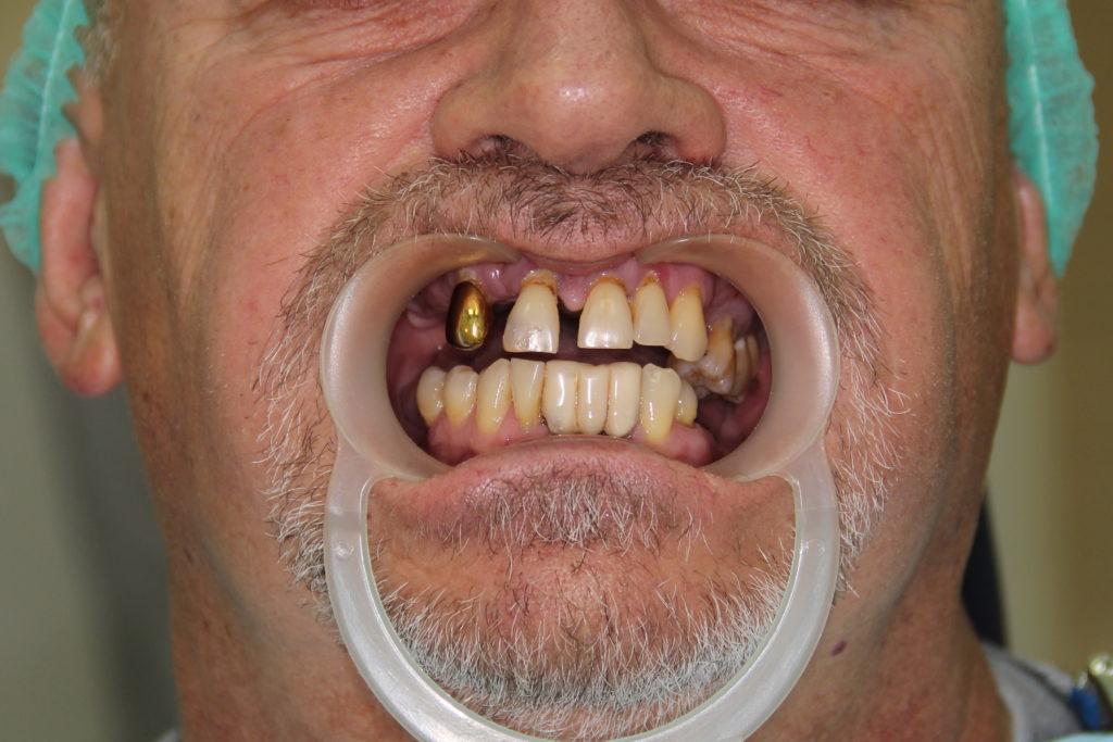 Стандартная подготовка к операции, которая за 24 часа вернула красивую и здоровую улыбку