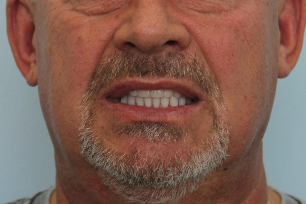 Установка на нижней и верхней челюстях по 4 имплантной системы
