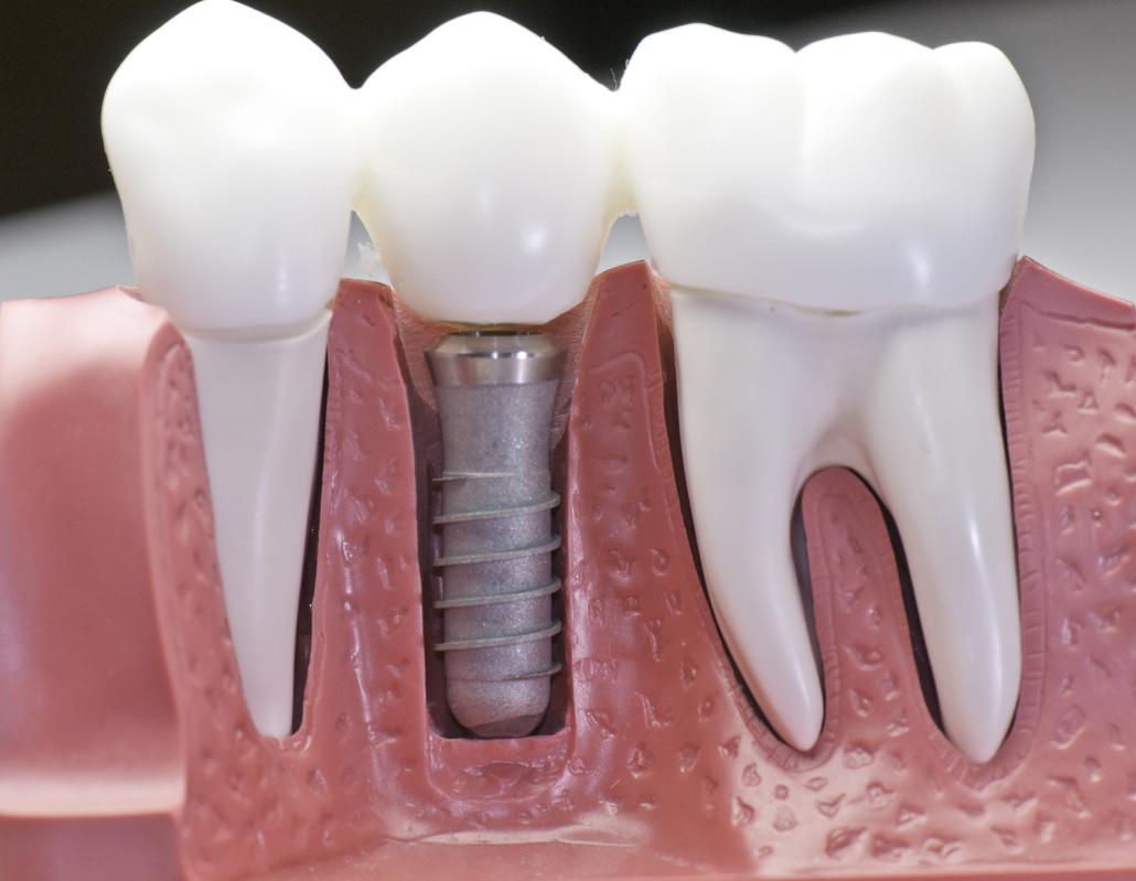 Fotos de proteses fixas dentarias 98
