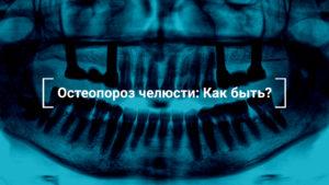 вернуть зубы при остеопорозе