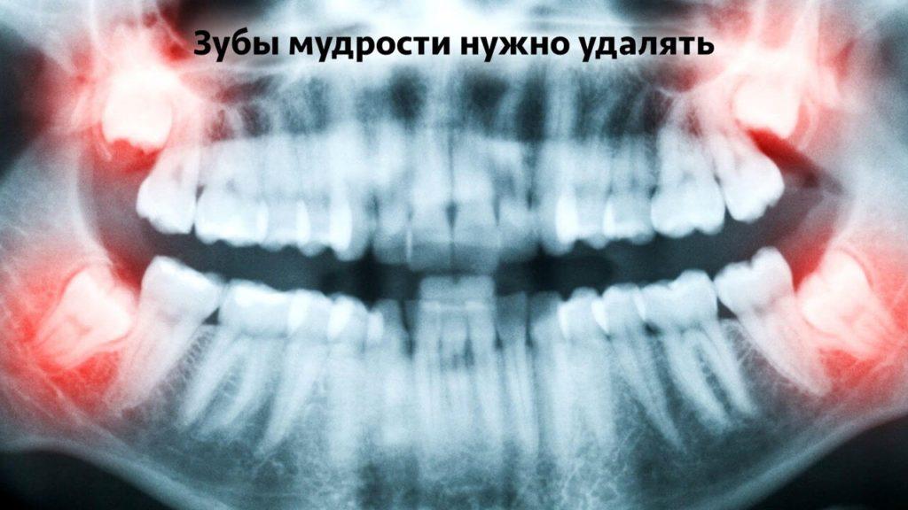 Зубы мудрости нужно ли их удалят