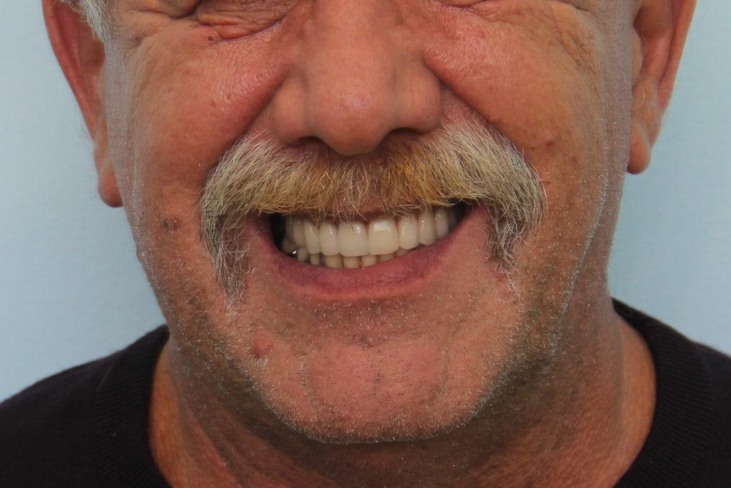 """Лаборатория сети клиник """"Зубы за 1 день"""" позволяет за 24 часа вылить протез для оперативной установки"""