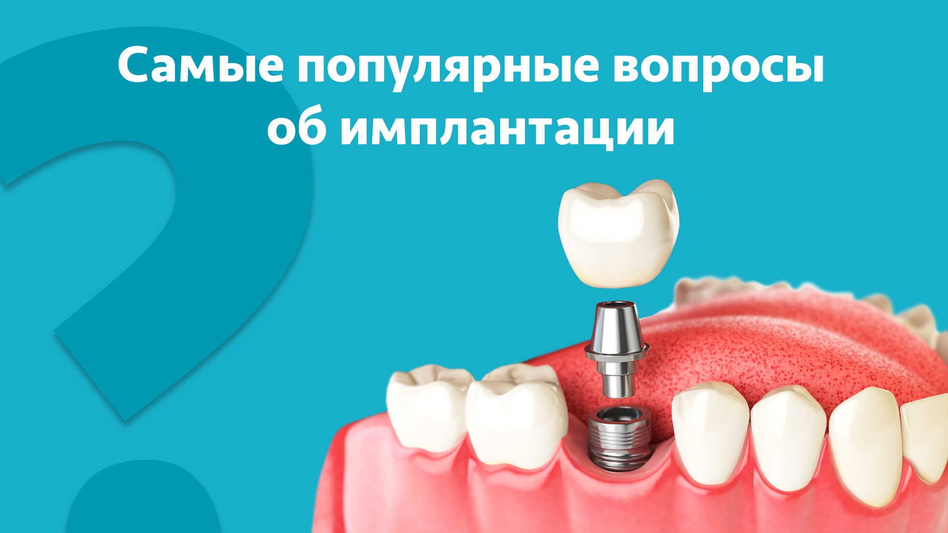 Кому задать вопросы по имплантации зубов