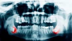 надо ли удалять восьмой зуб