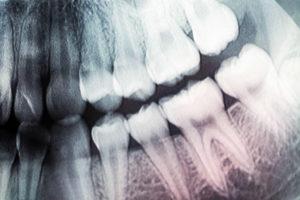 вернуть зубы в клинике