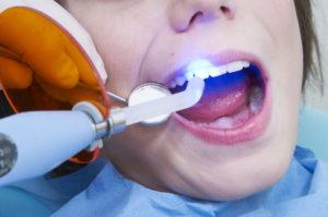 поставить пломбу на зубах
