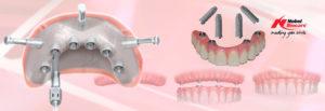 имплантаты нобель