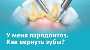 вернуть зубы при пародонтозе