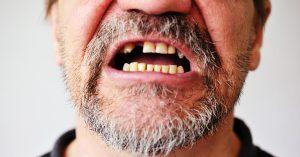 вернуть зубы