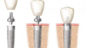 зубные импланты Nobel