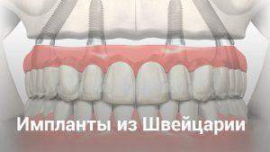 зубные импланты из швейцарии