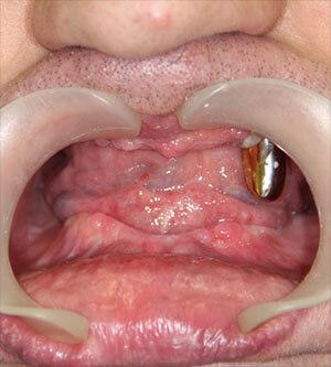 отсутствие зубов allon4