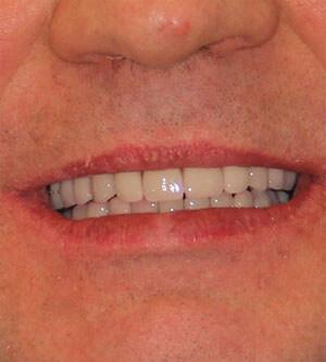 возвращение зубов allon4